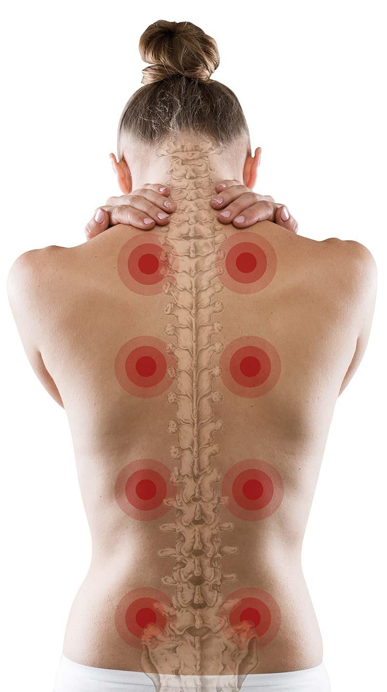 problemi-collona-vertebrale